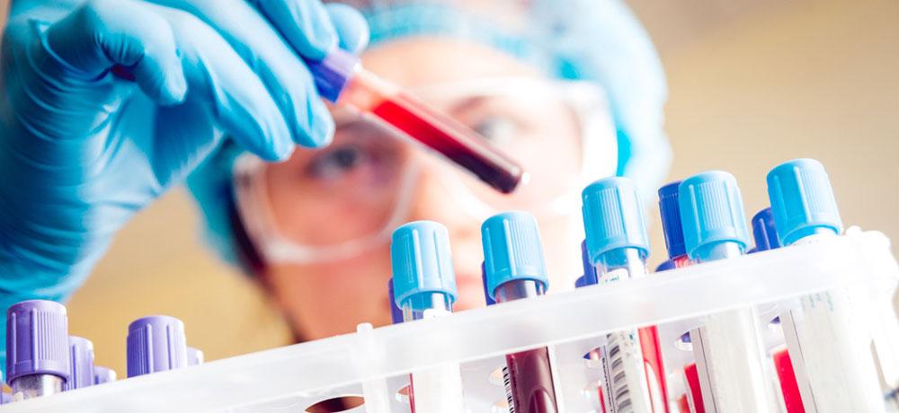 Teste de hematologie